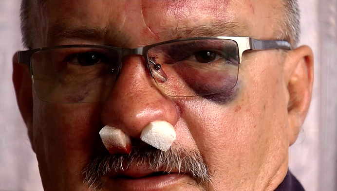 61-jarige man uit Turnhout zwaar toegetakeld aan eigen woning